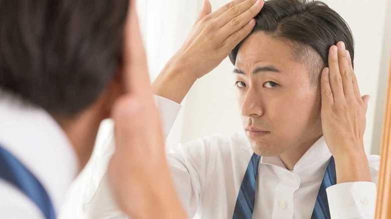 「最近、薄くなってきた気がする…」男性の薄毛(AGA)の定義、診断基準とは?