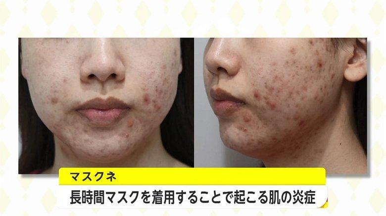 マスク生活の肌トラブル「マスクネ」とは?医師が勧めるニキビ・湿疹予防のスキンケアとマスク選び