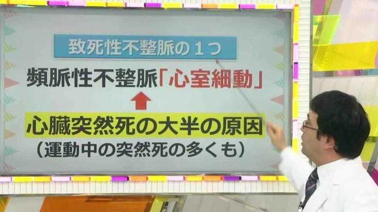 「私立恵比寿中学」松野莉奈さん急死の原因か。「致死性不整脈」による突然死を防ぐ