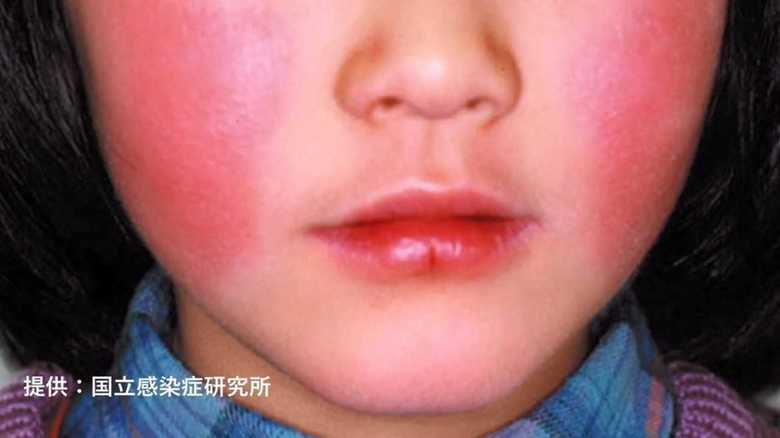 """赤い頬が出る頃にはもう遅い!患者急増の """"リンゴ病"""" 気づかず感染に要注意"""