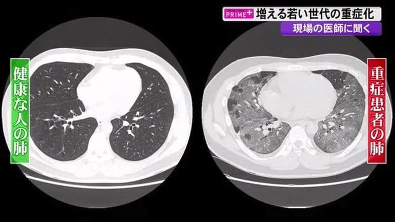 """基礎疾患がなくても…若い世代の重症化が増加 コロナ治療にあたる医師「""""うつぶせ""""の姿勢で肺を守る」【高知発】"""