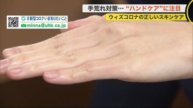 """「アルコールは皮膚のバリア機能無くす」感染対策と乾燥で手荒れ…専門医が""""正しい手洗い""""伝授"""
