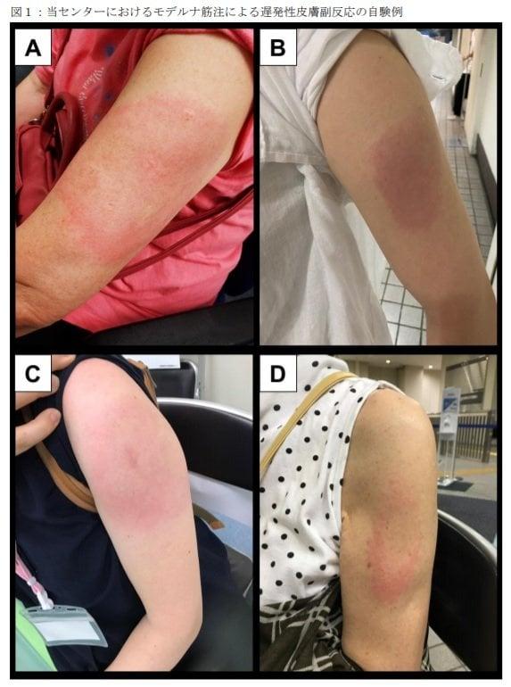 約18人に1人に「モデルナアーム」の症状…そのうち女性が83%となぜ多い? 調査した自衛隊中央病院に聞いた