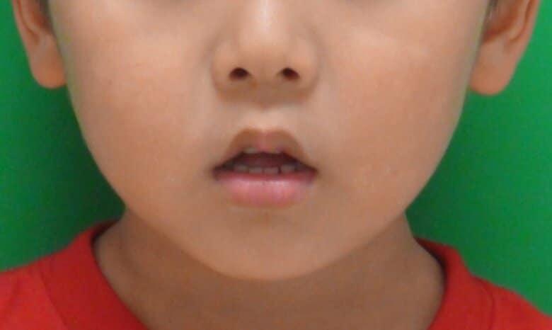 """子どもの""""お口ぽかん""""は自然治癒が難しい…全国400万人に可能性 その予防法を研究者に聞いた"""