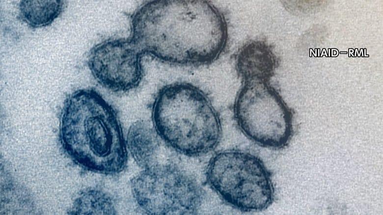 新型コロナ 東京都で新たに1502人の感染確認 重症者は135人