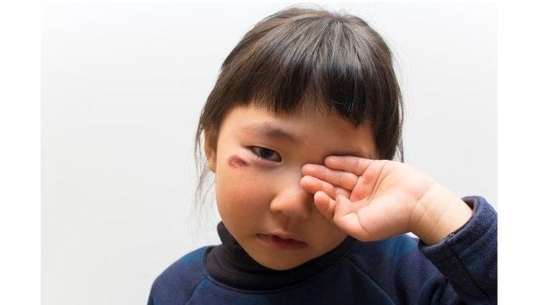 重篤化する児童虐待ケースの早期発見にAIを活用…効果はあった?実証実験を行った練馬区に聞いた