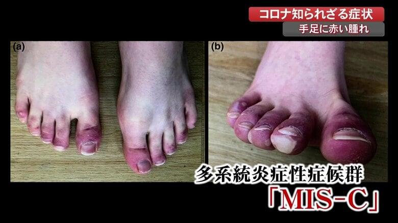 """コロナ感染した子どもに""""手足の腫れ"""" 血管が炎症、悪化すると心筋炎や心筋梗塞の恐れも【高知発】"""