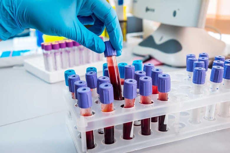 """少量の血液で14種類の""""がん""""の有無を判定 早期発見につながるか?詳細を聞いた"""