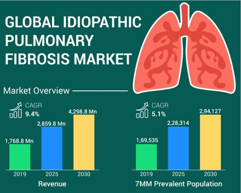 特発性肺線維症の世界市場の洞察、疫学、動向、および2021年から2030年までの予測